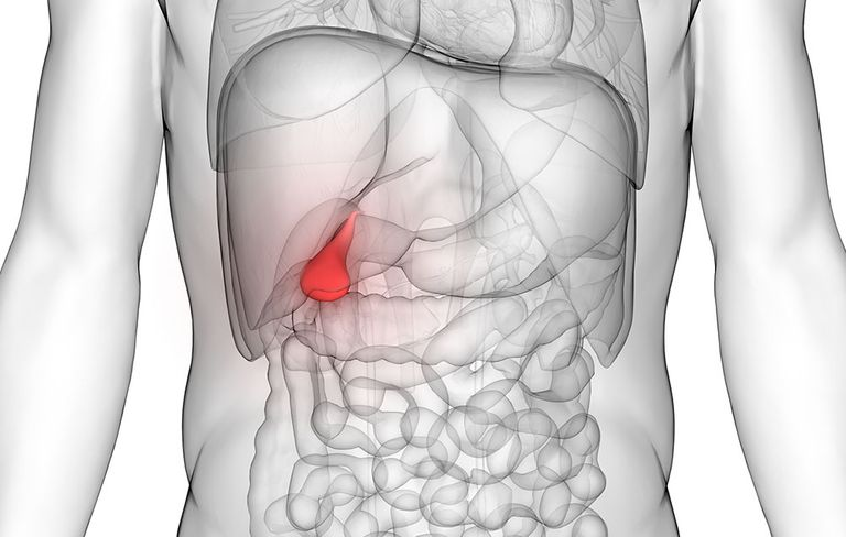 Human Gallbladder  Reasons For Removal  Size  And